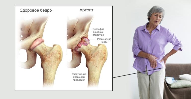 Остеоартроз что это такое и как его лечить | лечение суставов