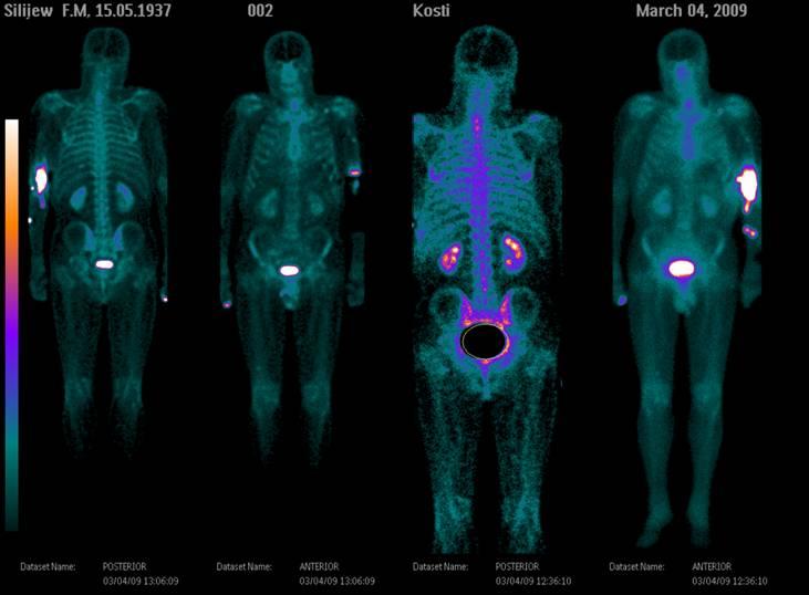 Что такое сцинтиграфия костей скелета:отзывы, где ее делают и сколько это стоит?