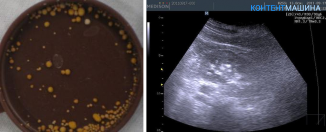 Микролиты в почках что это такое лечение — почки