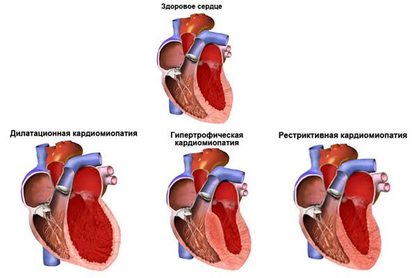 Дилатационная кардиомиопатия: причины, симптомы, лечение и прогноз