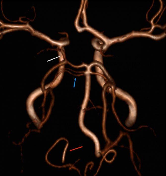 Особенности лечения гипоплазии позвоночной артерии