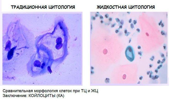 Мазок на онкоцитологию - обязательный анализ для всех женщин
