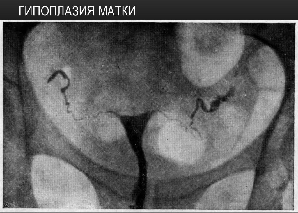 Двурогая матка: лечение, причины, симптомы, признаки, фото