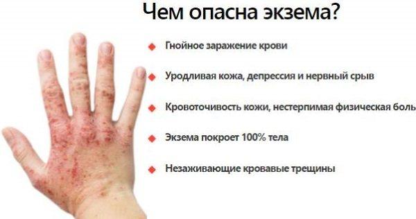 Сыпь на коже: как по высыпаниям определить, чем болеет человек
