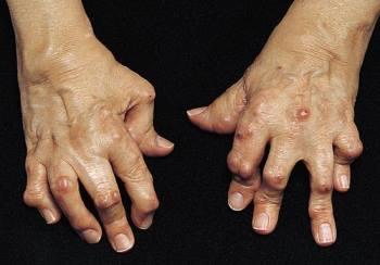 Характерные симптомы ревматоидного артрита