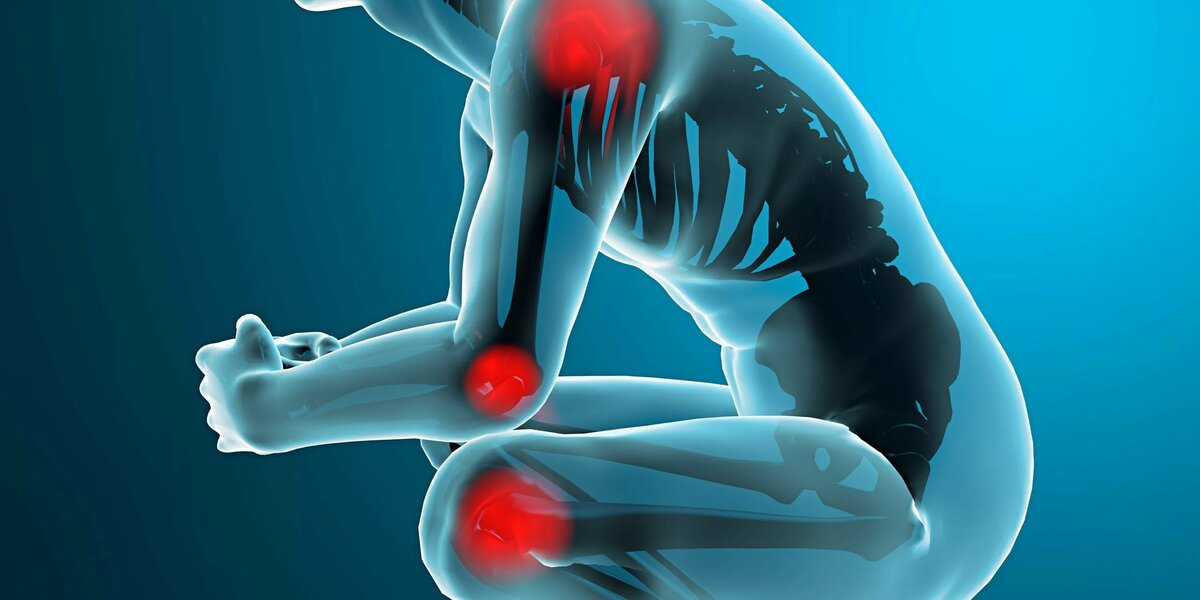 Артралгия - что это такое - диагностика и симптомы, медикаментозные и народные методы лечения