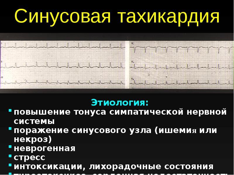 Причины возникновения и лечение синусовой тахикардии