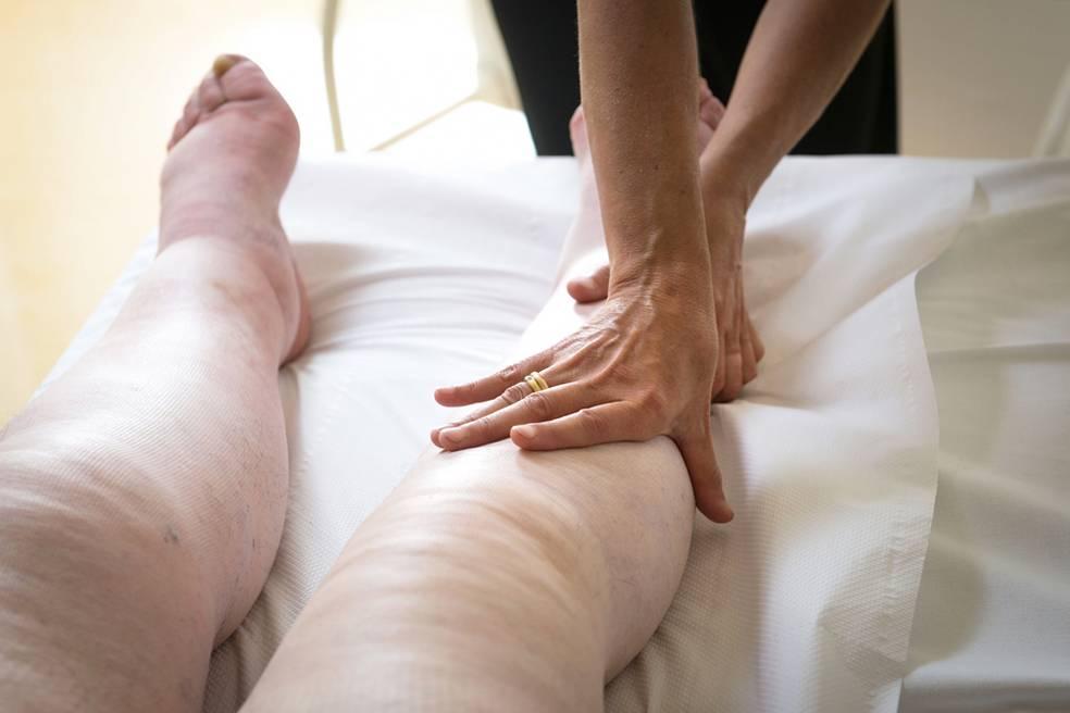 Лимфостаз нижних и верхних конечностей: причины, лечение, профилактика