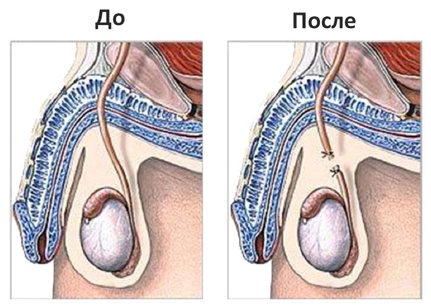Вазэктомия (мужская стерилизация): проведение, суть, плюсы и минусы