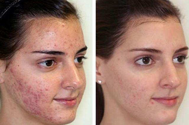 Ультразвуковая чистка лица: что это такое, как часто делать процедуру