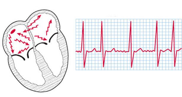 Абляция (рча сердца): что это такое, показания и противопоказания к операции