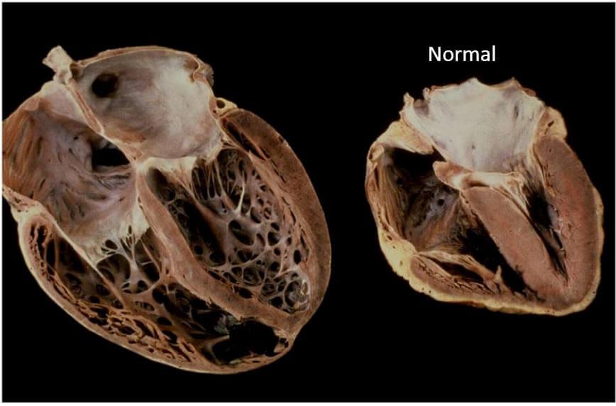 Алкогольная кардиомиопатия   компетентно о здоровье на ilive