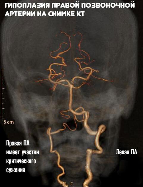Гипоплазия правой или левой позвоночной артерии - что это такое и чем грозит?
