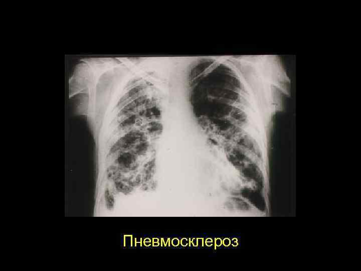 Пневмосклероз | симптомы | диагностика | лечение - docdoc.ru