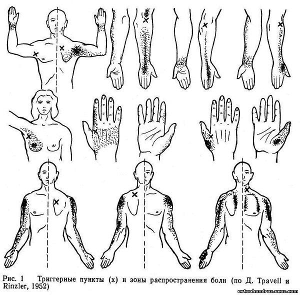 Чем опасна цервикалгия и что это такое - 8 причин, лечение + симптомы | spravki1.ru