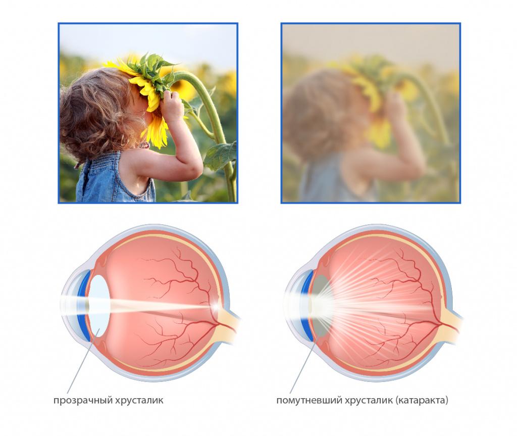 Гиперметропия – что это такое, плюс или минус: степени, симптомы, причины, лечение дальнозоркости