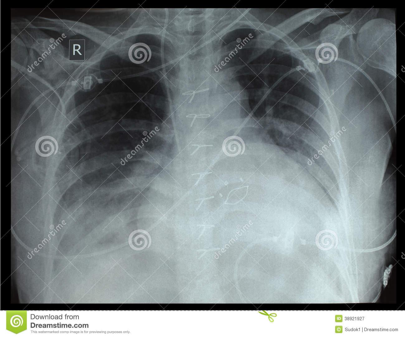 Что делать, если давит в грудине посередине?
