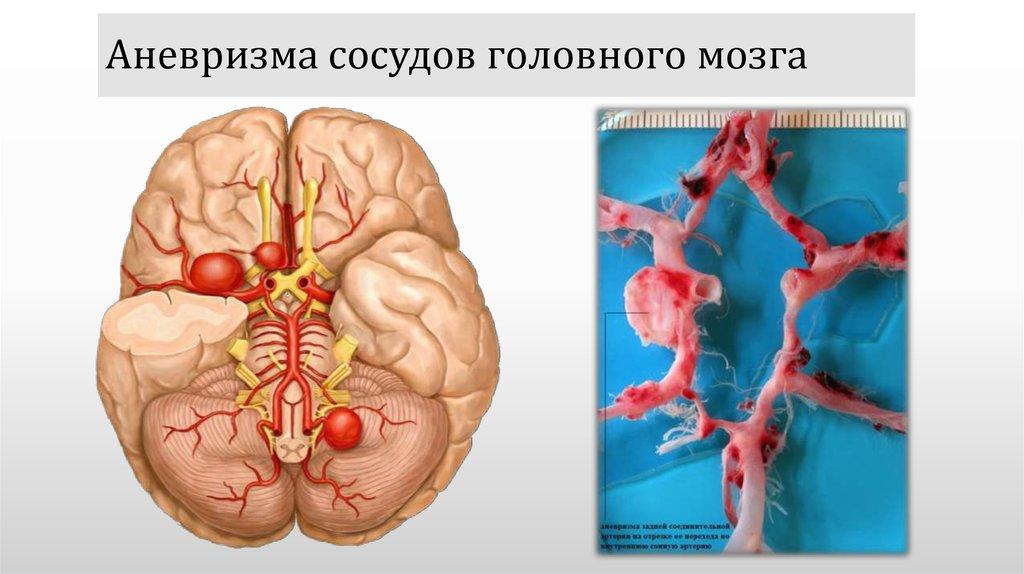Аневризма сосудов мозга: причины, признаки, последствия, операция