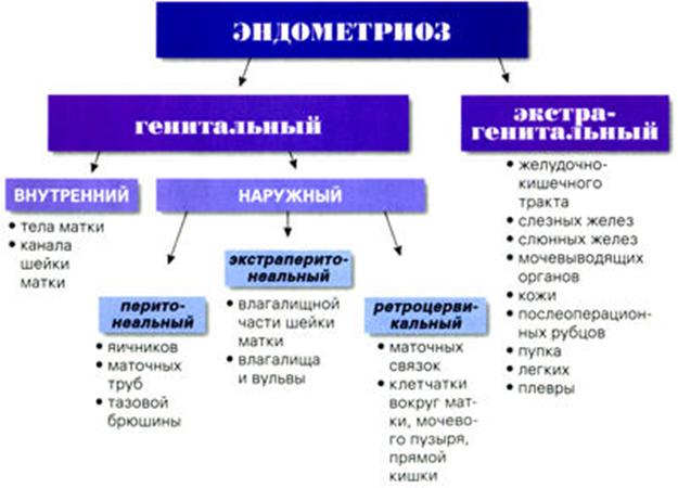 Эндометриоз: симптомы и лечение, народные средства и отзывы женщин