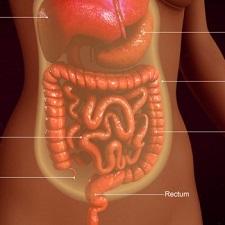 Перитонит - симптомы, лечение, причины болезни, первые признаки
