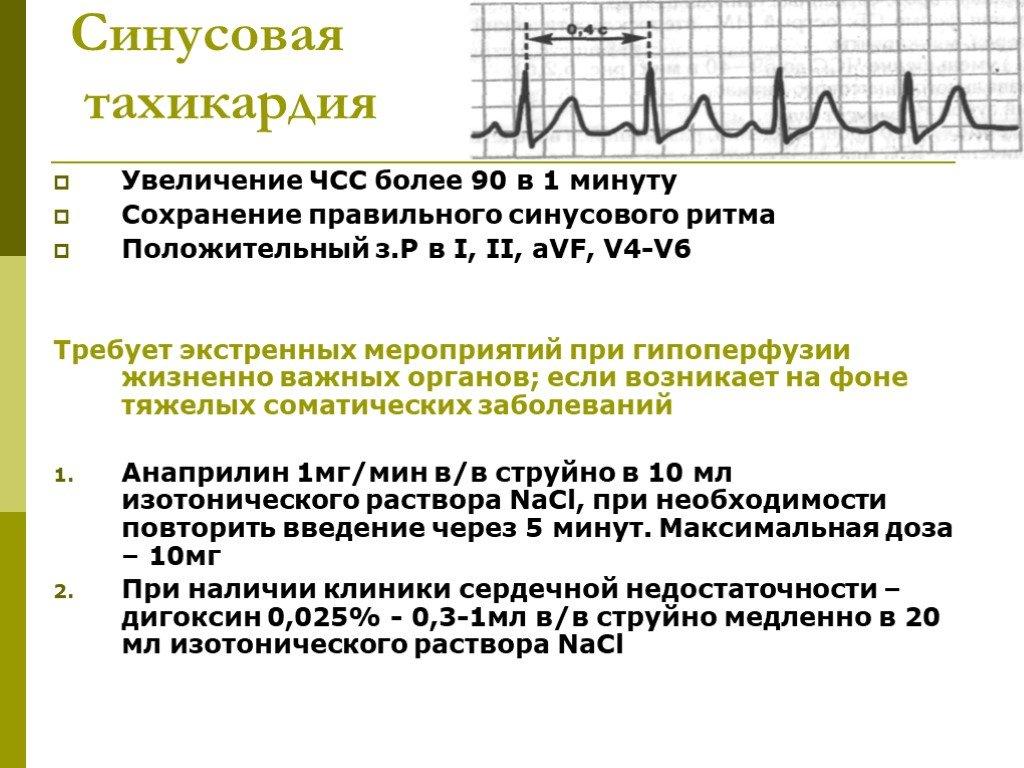 Синусовая тахикардия сердца: что это, симптомы и лечение, препараты, берут ли в армию