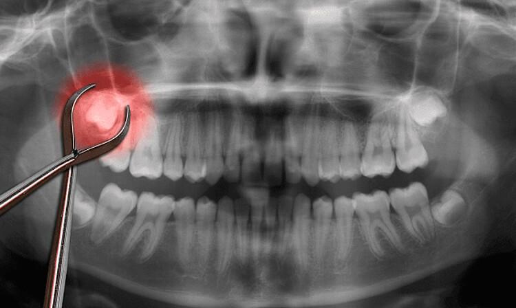 Ретинированный зуб: что это такое и чего от него ожидать