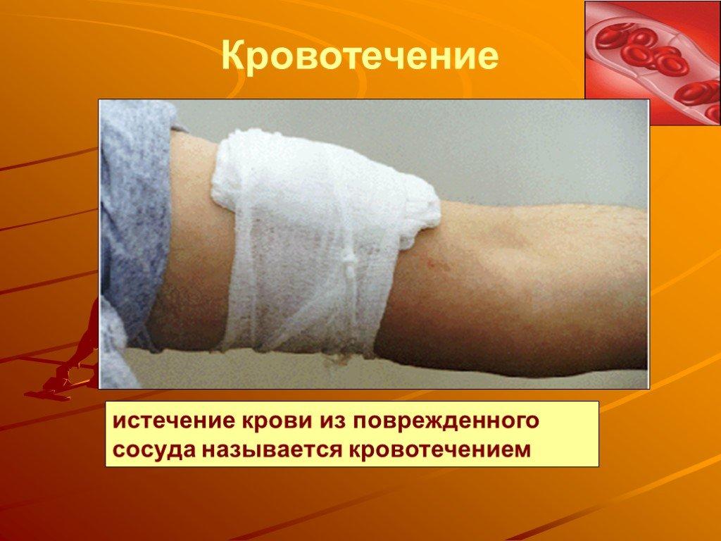 Кровотечение: виды и признаки
