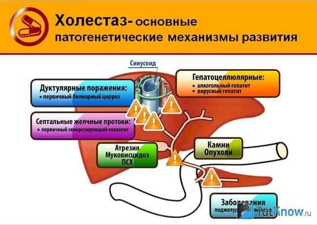 Холестаз - что это за заболевание? симптомы, причины и лечение холестаза :: syl.ru