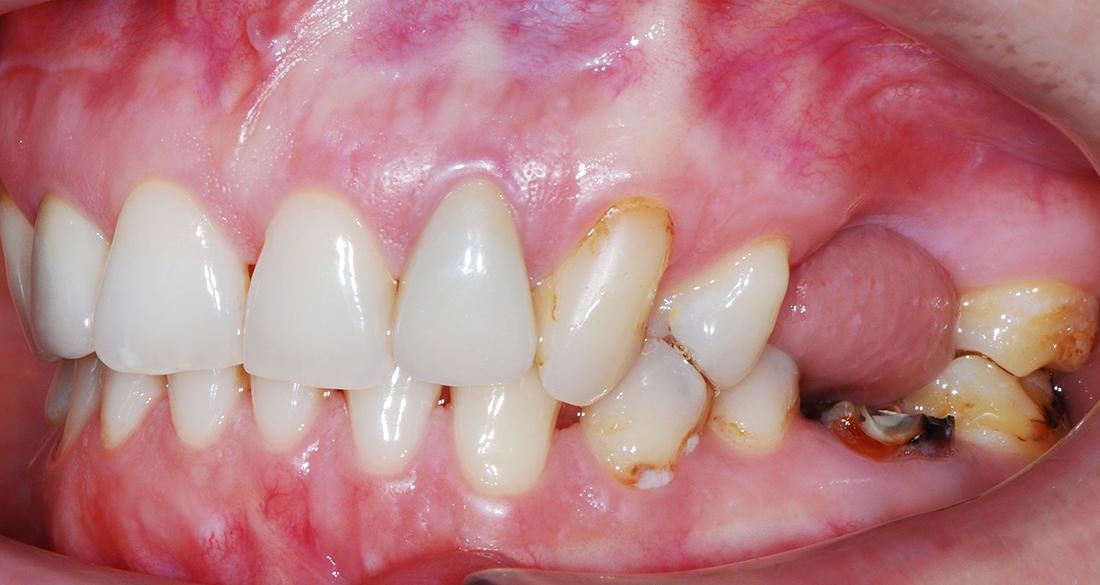 Зачем нужно носить ретейнеры на зубах после брекетов; можно ли этого избежать