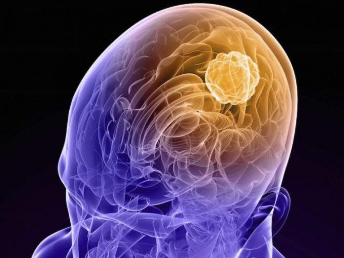 Менингиома головного мозга – что это такое? менингиома головного мозга – лечение без операции, операция, прогноз жизни