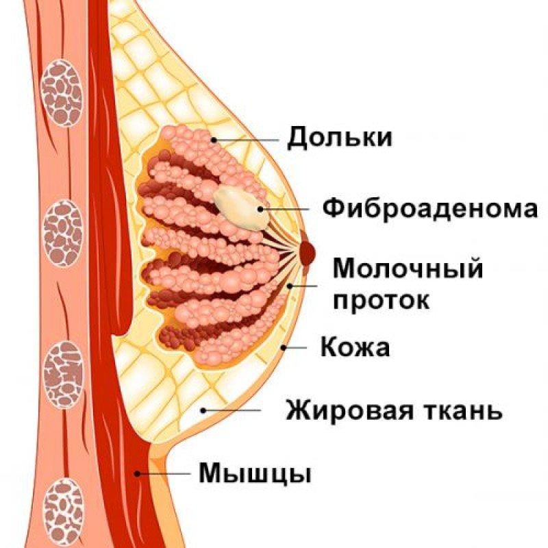 Фиброаденома молочной железы: когда удалять, размеры для операции