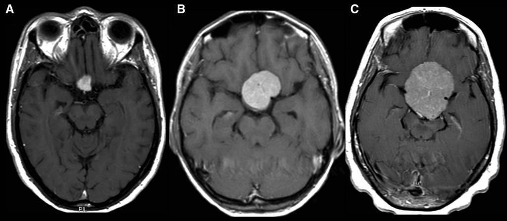 Глиобластома головного мозга - что это? болезнь анастасии заворотнюк