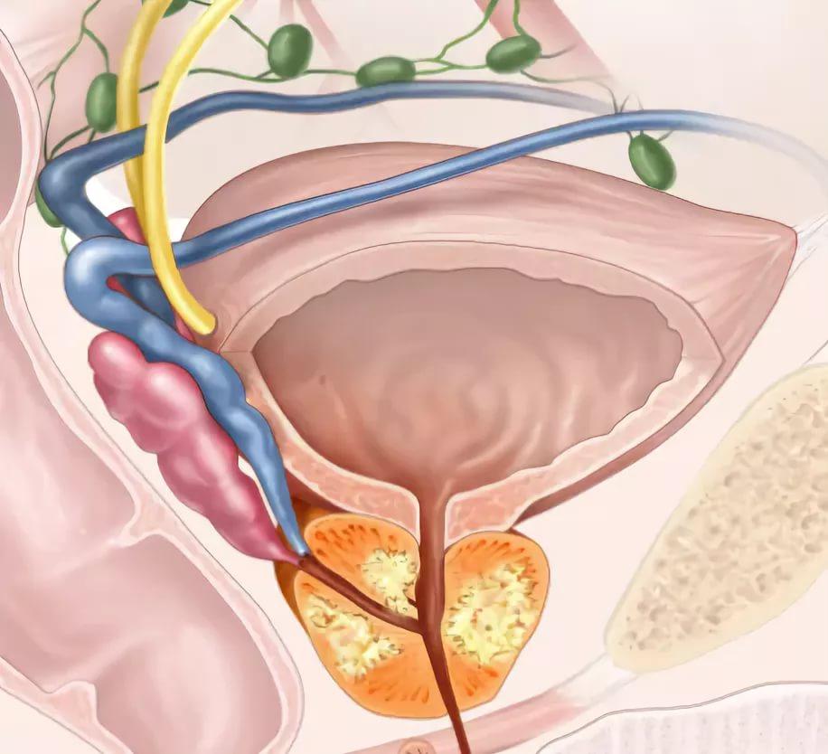 Самые эффективные народные средства для лечения аденомы простаты