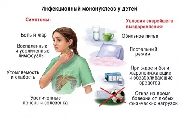 Вирус эпштейна-барра у детей: первичные признаки и симптомы проявления заболевания