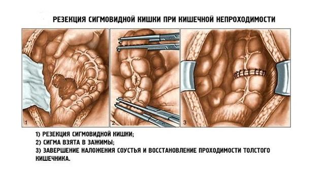Долихосигма кишечника – что это такое? удлиненный кишечник, долихосигма – симптомы, лечение, операция