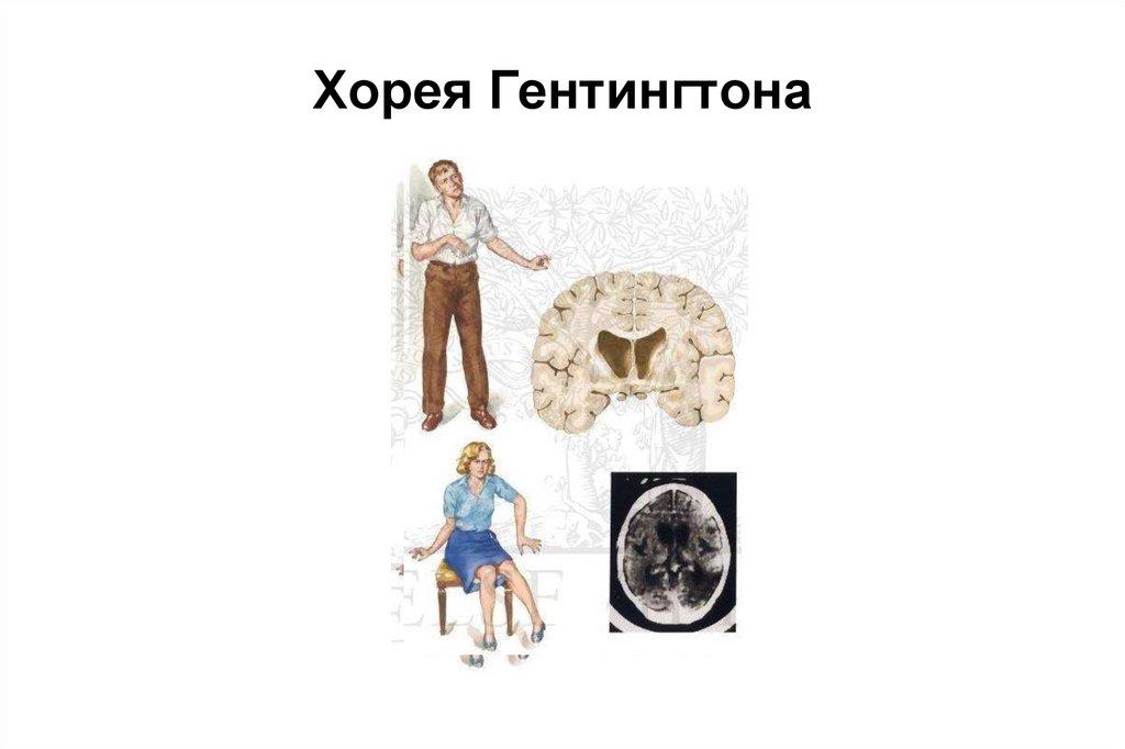 Хорея гентингтона или хантингтона: что это такое, симптомы и причины синдрома, лечение лекарствами