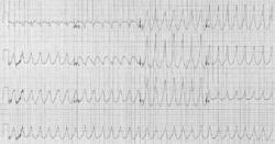 Тахикардия: что это такое, причины, симптомы и лечение учащенного сердцебиения