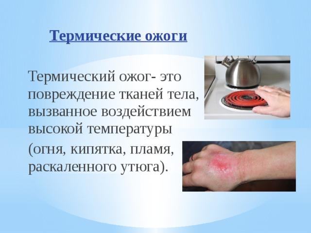 Ожог термический, симптомы, первая помощь и лечение