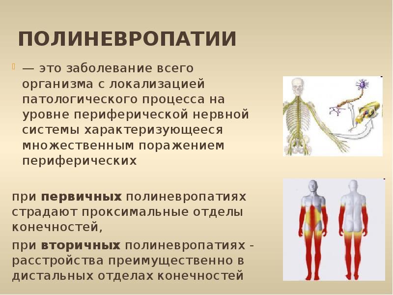 Причины, симптомы и лечение алкогольной полинейропатии