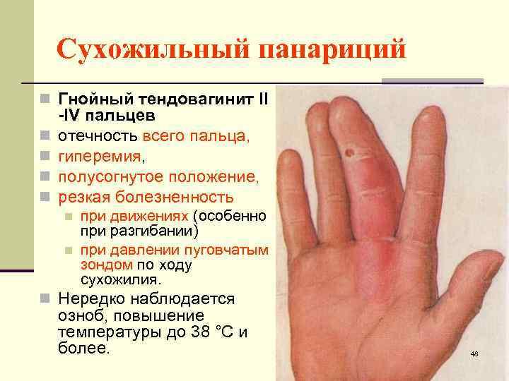 Панариций на пальцах рук и ног: лечение, фото, что это такое, виды