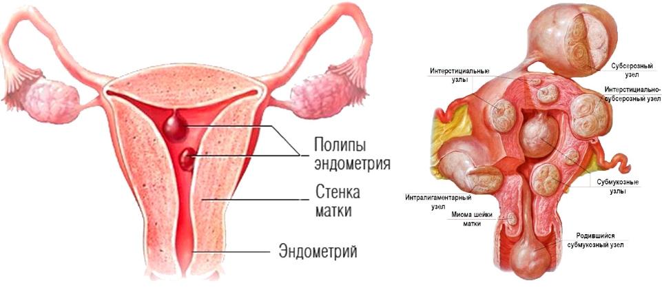 Лечение железистого полипа эндометрия