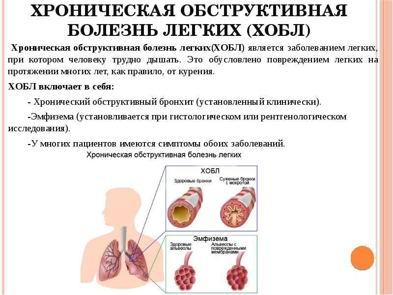 Ранние признаки хобл: какие первые симптомы хронической обструктивной болезни лёгких, как начинает проявляться хобл, как распознать болезнь на ранней стадии
