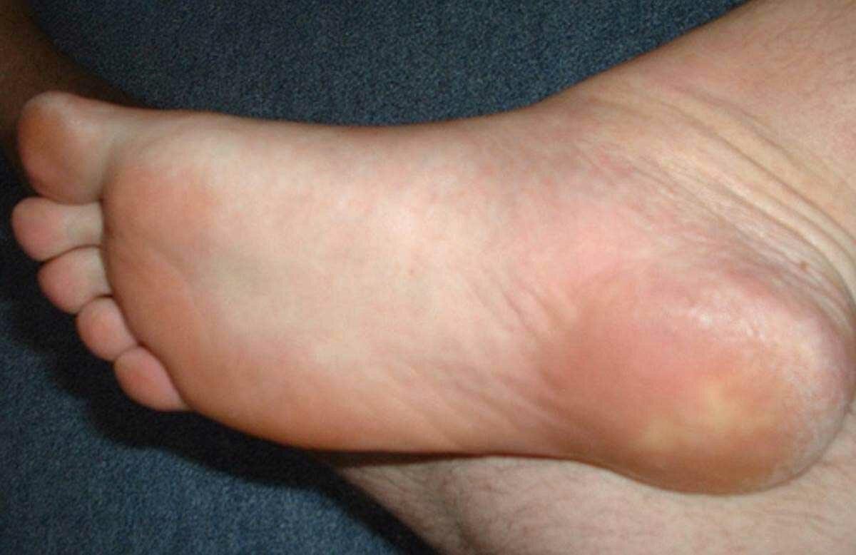 Пяточная шпора (подошвенный фасциит) - симптомы, способы лечения
