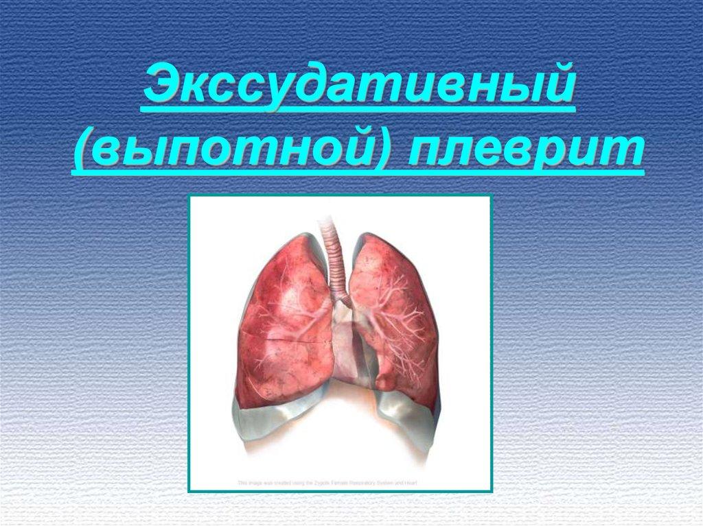 Плеврит легких – причины, симптомы, лечение