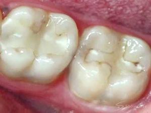 Как делают пломбу на зуб: последовательное описание этапов