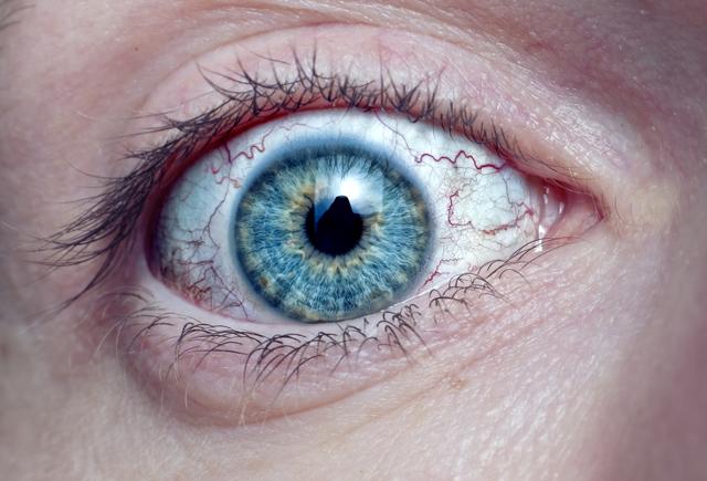 Кератит глаза: фото, симптомы и лечение