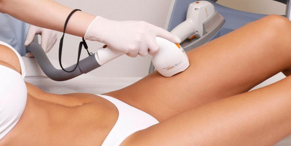 Лазерная эпиляция подготовка к процедуре на лице, ногах: тонкости перед лазерной эпиляцией - волосовед