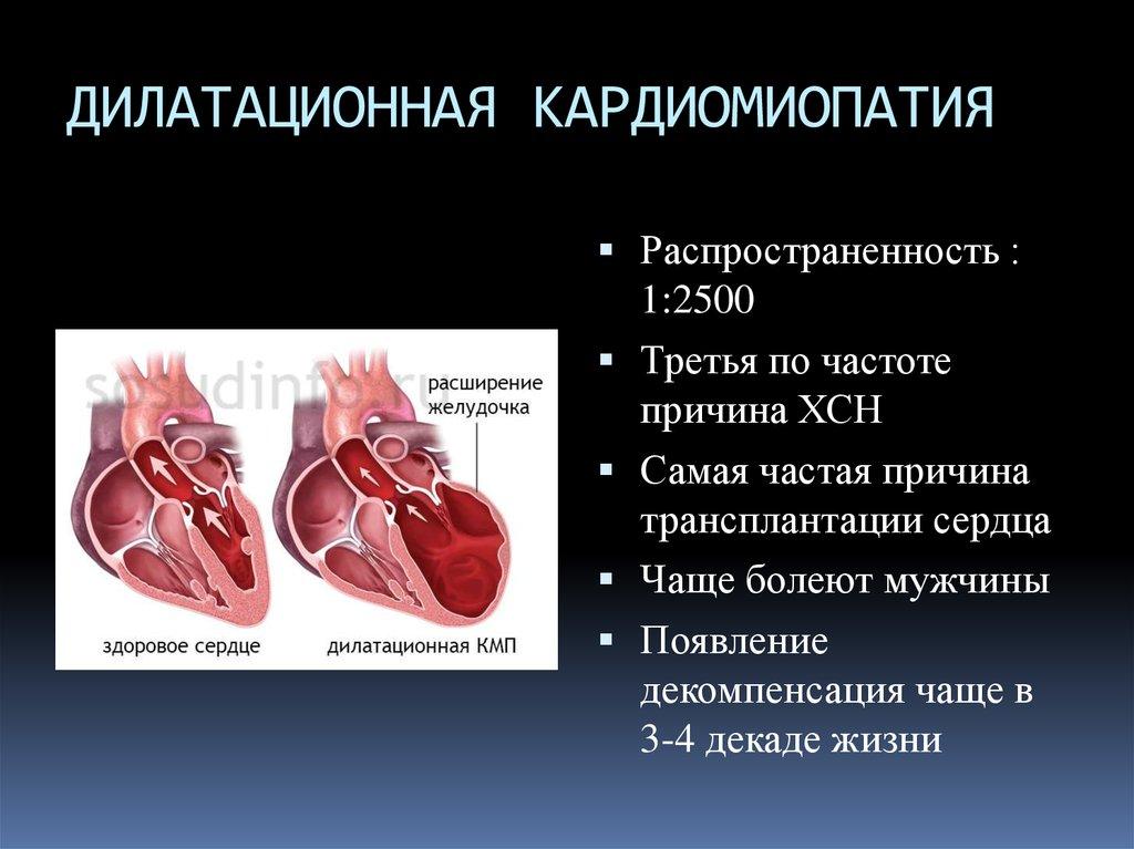 Большое сердце (кардиомегалия): что это такое, симптомы и лечение - медсовет24/7