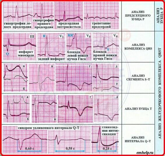 Синусовый ритм на экг: что это означает, признаки на кардиограмме сердца