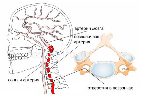 Чем гипоплазия артерий головного мозга опасна для человека?
